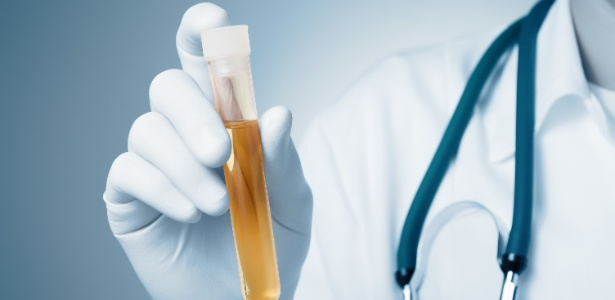 exame-de-urina-1484249883089_615x300